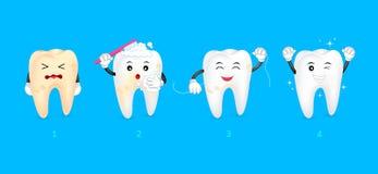 Cztery kroka cleaning ząb Obraz Stock