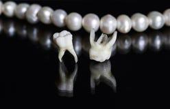 Dålig rutten tand som två ut dras, och lögn mitt emot den bländande when Royaltyfri Bild