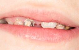 Dåliga tänder i munnen Närbild arkivfoton
