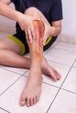 Dé el abarcamiento de la rodilla herida con la abrasión dolorosa a partir de la caída Imágenes de archivo libres de regalías