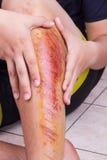 Dé el abarcamiento de la rodilla herida con la abrasión dolorosa a partir de la caída Foto de archivo