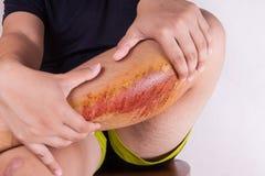 Dé el abarcamiento de la rodilla herida con la abrasión dolorosa a partir de la caída Foto de archivo libre de regalías