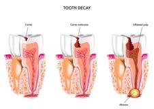 Décomposition dentaire Photo libre de droits