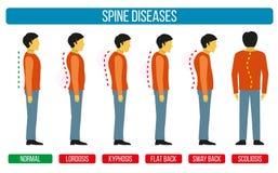 Défaut de posture de corps Infographics de vecteur des maladies d'épine Diagrammes médicaux de scoliose et de lordose Photos stock