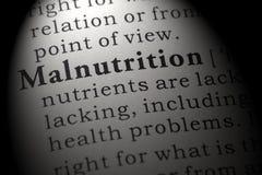Définition de malnutrition photographie stock