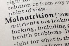 Définition de malnutrition photos stock