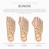 Déformation de pied en tant que desease médical infographic Causes de bunio illustration de vecteur
