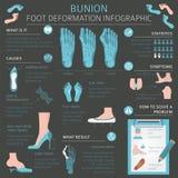 Déformation de pied en tant que desease médical infographic Causes de bunio Images stock