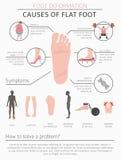 Déformation de pied en tant que desease médical infographic Causes d'appartement Image libre de droits