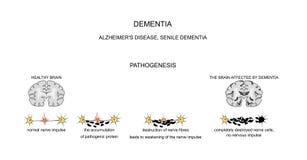 Démence, maladie d'Alzheimer pathogénie Photos stock