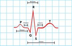 Dépolarisation atriale et ventriculaire normale avec  Photos stock