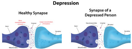 dépression illustration stock