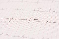 Détail d'un électrocardiogramme Image libre de droits