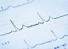 Détail d'un électrocardiogramme Photo libre de droits