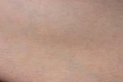 détail humain de peau Images libres de droits