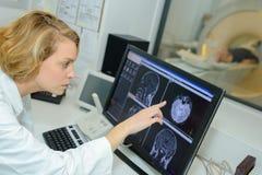 Détection de l'anomalie dans l'organe images stock