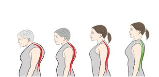 Développement d'une position penchée avec l'âge, montrant illustration stock
