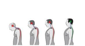 Développement d'une position penchée avec l'âge, montrant la courbure croissante de l'épine illustration libre de droits