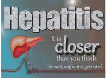 Día de la hepatitis del mundo ilustración del vector