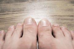 Dłudzy gwoździe na męskich nogach Zdjęcie Stock