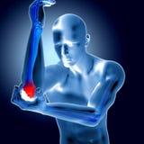 3d一个医疗图的例证与痛苦的手肘的 皇族释放例证