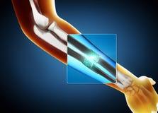 3d一根断尺骨和半径骨头的X-射线图象的例证 向量例证
