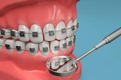 3D从一牙齿括号检查的翻译与stomatoscope 库存照片