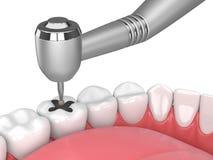 3d回报与牙、牙齿handpiece和钻子的下颌 皇族释放例证