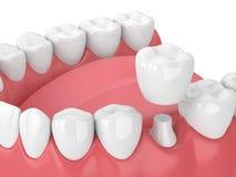 3d回报与牙和牙齿冠恢复的下颌 库存例证