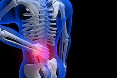 3d回报了例证-腰疼 库存图片