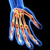 3D手骨骼-一部分的例证的人的骨骼 免版税库存照片