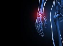 3d übertragen die menschlichen Hand- und Handgelenkschmerz Lizenzfreie Stockbilder