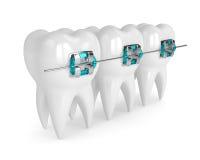 3d übertragen vom teethh mit Klammern Stockbilder