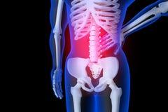 3d übertrug Illustration - Rückenschmerzen Stockbilder