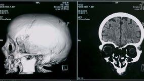 3D aftasten van hersenen, sluit omhoog Het speciale materiaal tast geduldige hersenen van ` s bij een kliniek af stock video