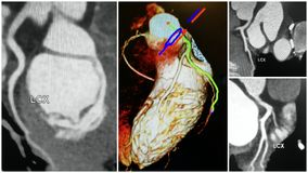 3D angio tomography heart lcx artery collage. Anatomical specifics of LCX of heart is great to see with the help of modern angio 3D CT technology . There is stock images