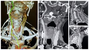 3D angio tomography right internal carotid artery collage. Anatomical specifics of RICA is great to see with the help of modern angio 3D CT technology . There is royalty free stock photography