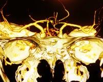 3D angio X线体层照相术扫描脑子船 库存图片