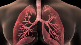 3D animatied Bronchiolitis - Inflammation of the Bronchioles royalty free illustration