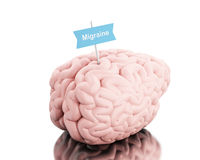 3d Brain with a signboard and word migraine. 3D Illustration. Brain with a signboard and word migraine. Isolated white background Royalty Free Stock Photography