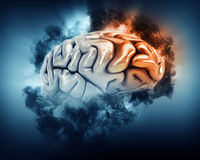 3D brain with storm clouds and frontal lobe highlighted. 3D render of a brain in storm clouds with frontal lobe highlighted Stock Photos