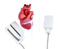 3d discharge of defibrillator and the heart. Royalty Free Stock Image