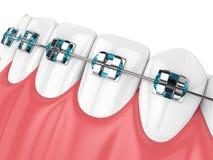 3d geef van kaak met tanden en orthodontische steunen terug Royalty-vrije Stock Afbeeldingen
