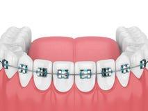 3d geef van kaak met tanden en orthodontische steunen terug Royalty-vrije Stock Foto's