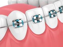 3d geef van kaak met tanden en orthodontische steunen terug Royalty-vrije Stock Foto