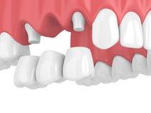 3d geef van tandbrug met kronen in hogere kaak terug Stock Fotografie