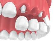 3d geef van tandbrug met kronen in hogere kaak terug Stock Foto