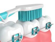 3d geef van tanden met steunen en tandenborstel terug Stock Foto