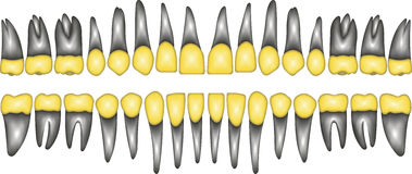 3D gold crown tooth Royalty Free Stock Images