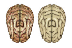 3D healthy and diseased brains. 3D render of two brains, one healthy and one diseased Royalty Free Stock Image